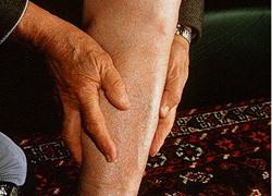 Đau mỏi, co cứng bắp chân khi đi bộ, coi chừng tắc mạch máu