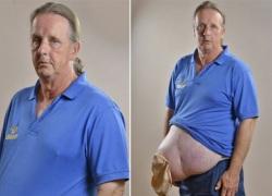 Người đàn ông có khối thoát vị lòi ra khỏi bụng