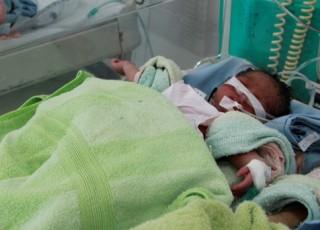 Cứu sống bé sơ sinh thiếu tháng nặng 1,5kg bị bỏ rơi