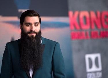 Đề nghị điều tra vụ đạo diễn 'Kong' bị đánh phải nhập viện ở TP.HCM