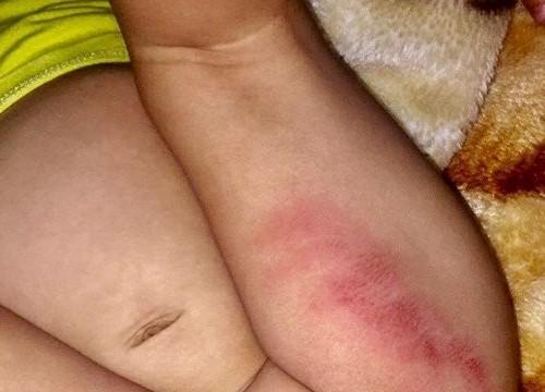 Vụ bé gái bị tím bầm hai đùi: Chủ nhà trẻ nói do… bé gãi
