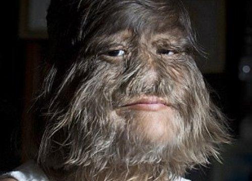 """Ngắm mặt thật của cô gái """"người sói"""" lần đầu cạo mặt"""