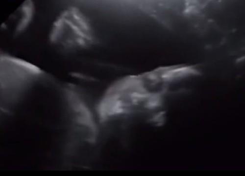 Kỳ diệu hình ảnh thai nhi trong bụng mẹ vẫy tay chào
