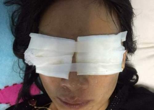 Mẹ chồng tạt axít vào mặt con dâu chết tại nhà riêng