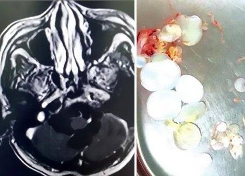 Buồn nôn đến viện khám, không ngờ phát hiện 30 trứng sán dây trong đầu