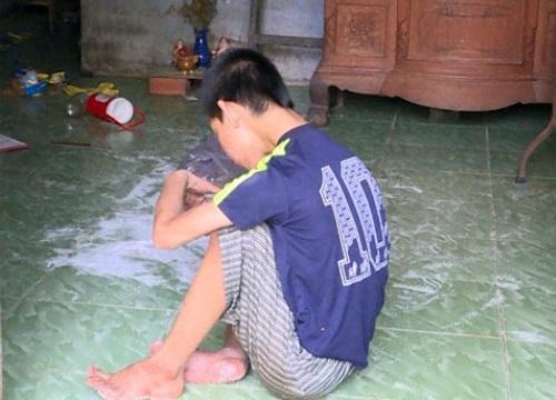 Người con khuyết tật nghi bị bỏ đói: Cần được chữa trị lâu dài
